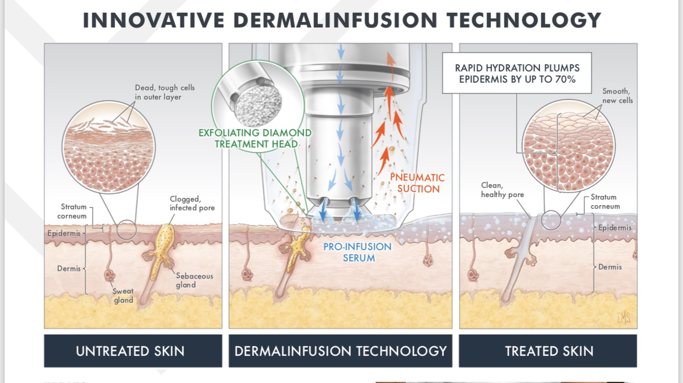 Microdermabrasion with Dermal Infusion